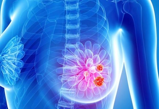 """Tarptautinė mokslinė praktinė konferencija """"Šiuolaikinės krūties vėžio gydymo tendencijos"""""""
