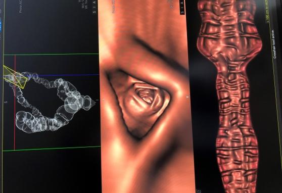 Naujas įrankis kovoje su storosios žarnos vėžiu padeda net išskirtiniais atvejais